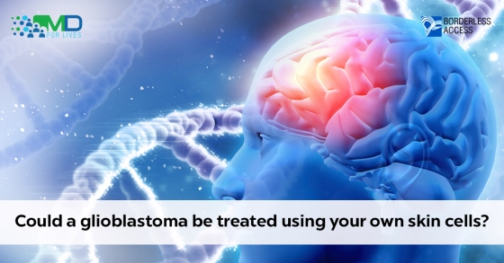 Glioblastoma to be treated using your own skin cells