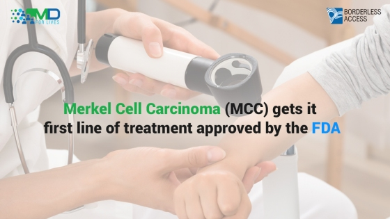 Merkel Cell Carcinoma (MCC) gets it first line of treatment approved by the FDA